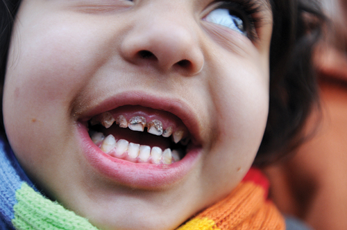 Many of the children in the Osterrode Resettlement Camp have so much lead in their food and drinking water that it leaches from their teeth and rots their gums.